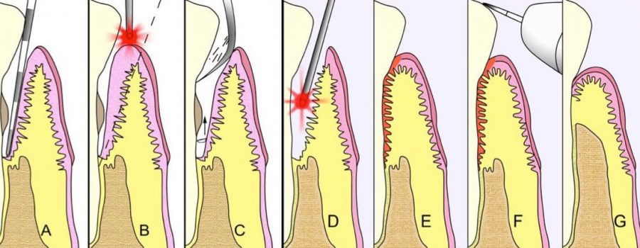 Illustration showing the seven phases of laser therapy.